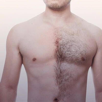 Body hair as a supplement for a hair transplant - Zty Hair Transplantation Turkey