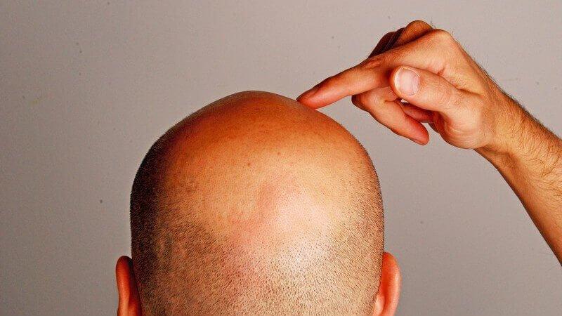 Haartransplantation als Schutz - Zty Haartransplantation Türkei