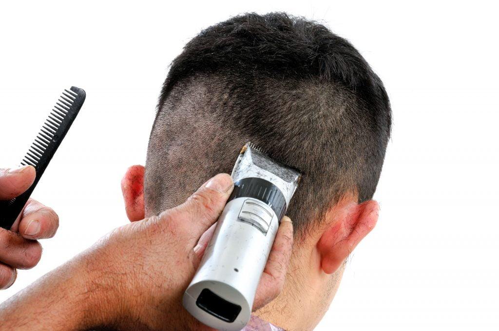 Verhindern von schlechter Haartransplantation - ZTY Haartransplantation Türkei
